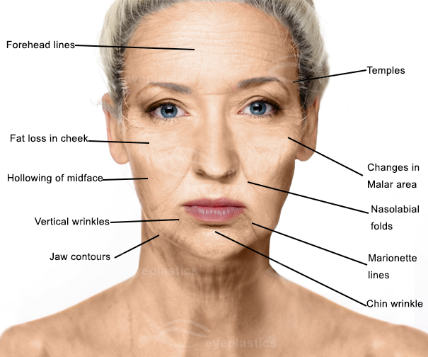 Aging Face | mid face aging face | Face lift | Facelift
